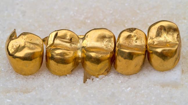 How Much is Your Dental Gold Really Worth?