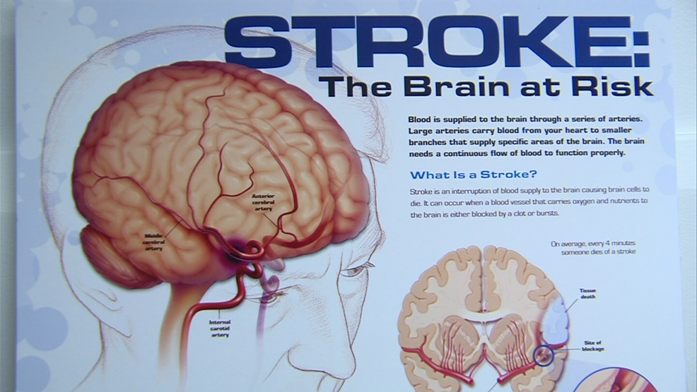 Study: Impact of stroke goes way beyond physical challenges | WKRC