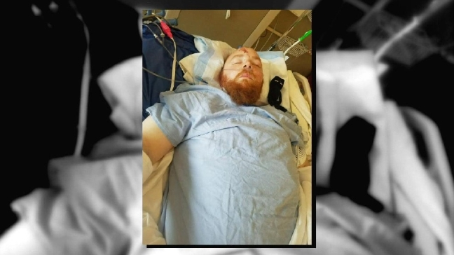 Hit-and-run suspect calls victim who is losing leg, says he's sorry