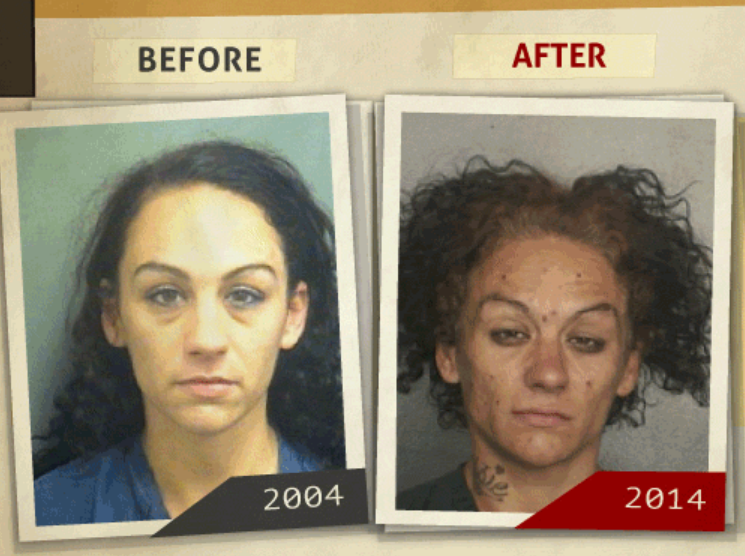 Side-by-side 2004 and 2014 photo taken of woman who reportedly had a 'possession of drug paraphernalia ' charge. (Photo, info from rehabs.com/)