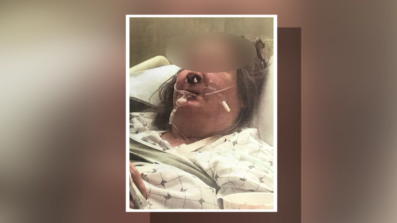 Reward offered for suspects after 73-year-old woman beaten, nearly suffocated in her home (WKRC)